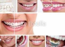 Murales Bocas y dientes con y sin aparato dental